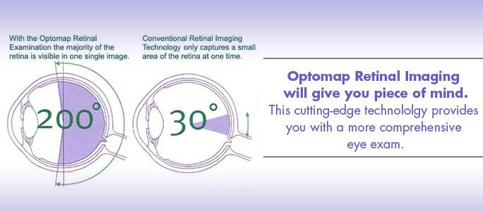 Optomap retinal imaging will give you peace of mind